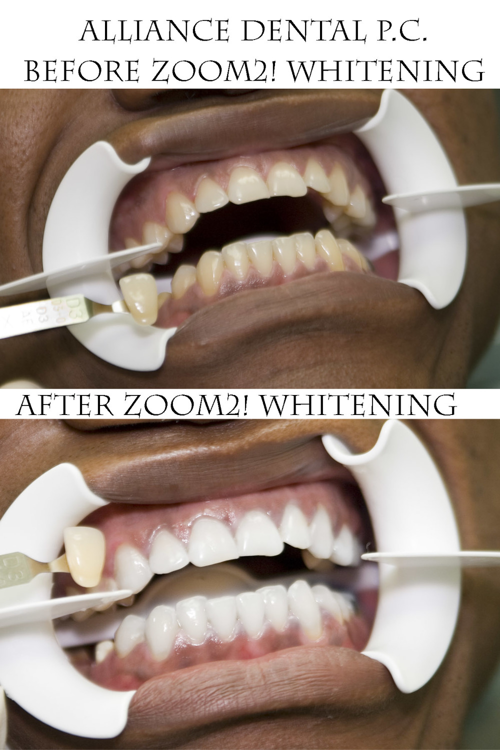 Zoom Professional In-Office Whitening Case #1