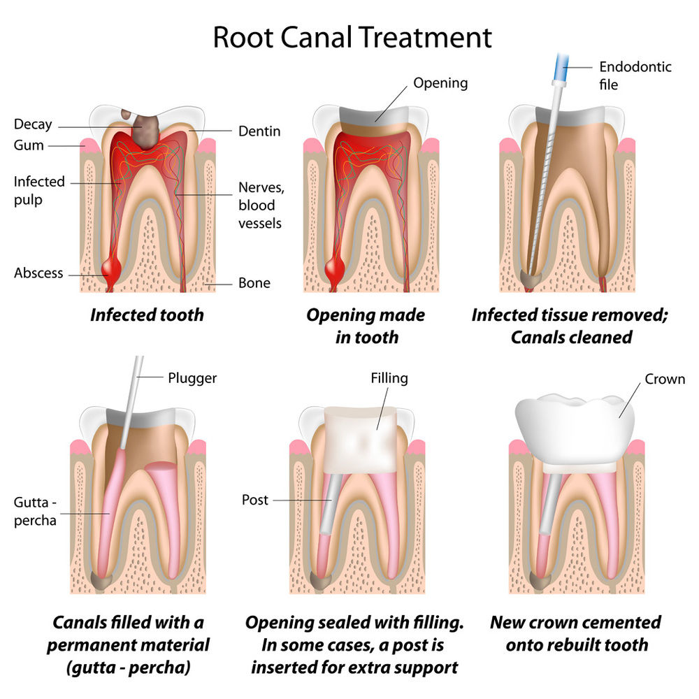 Root canal treatment is a completely painless procedure that is done under local anesthesia. It allows us to save your tooth for many years.