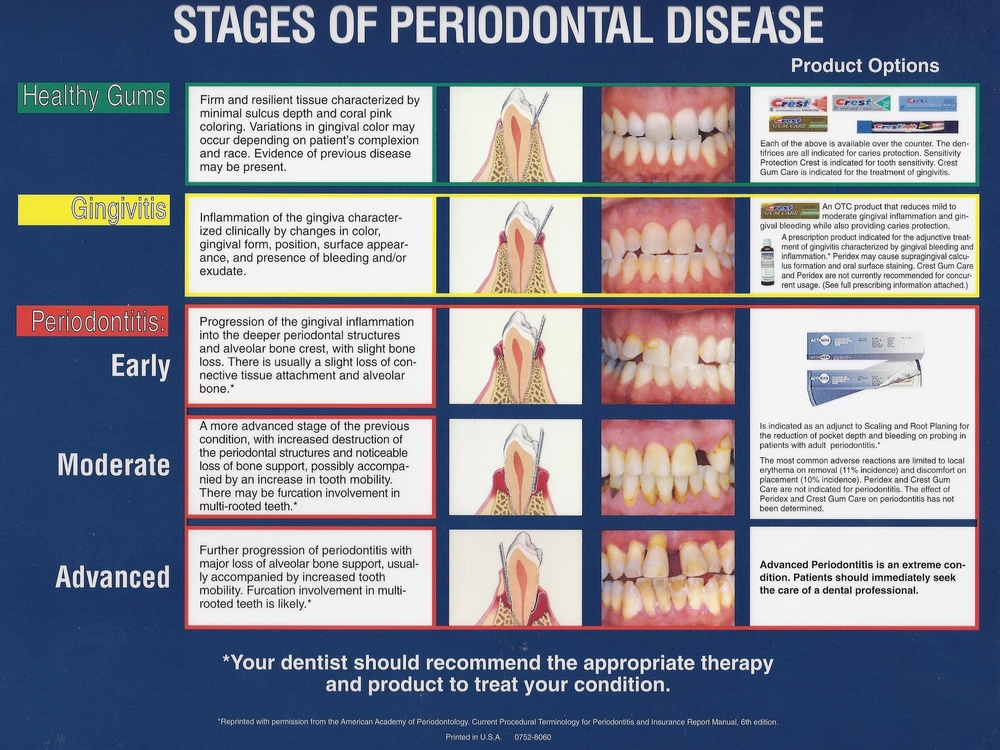 Stages of gum/periodontal disease.