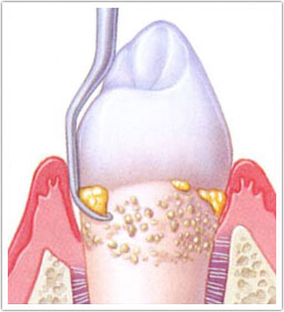 Removal of hard deposits from the surface of the tooth below the level of the gum