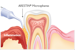 Placement of Arestin antibiotic at the site of periodontal disease