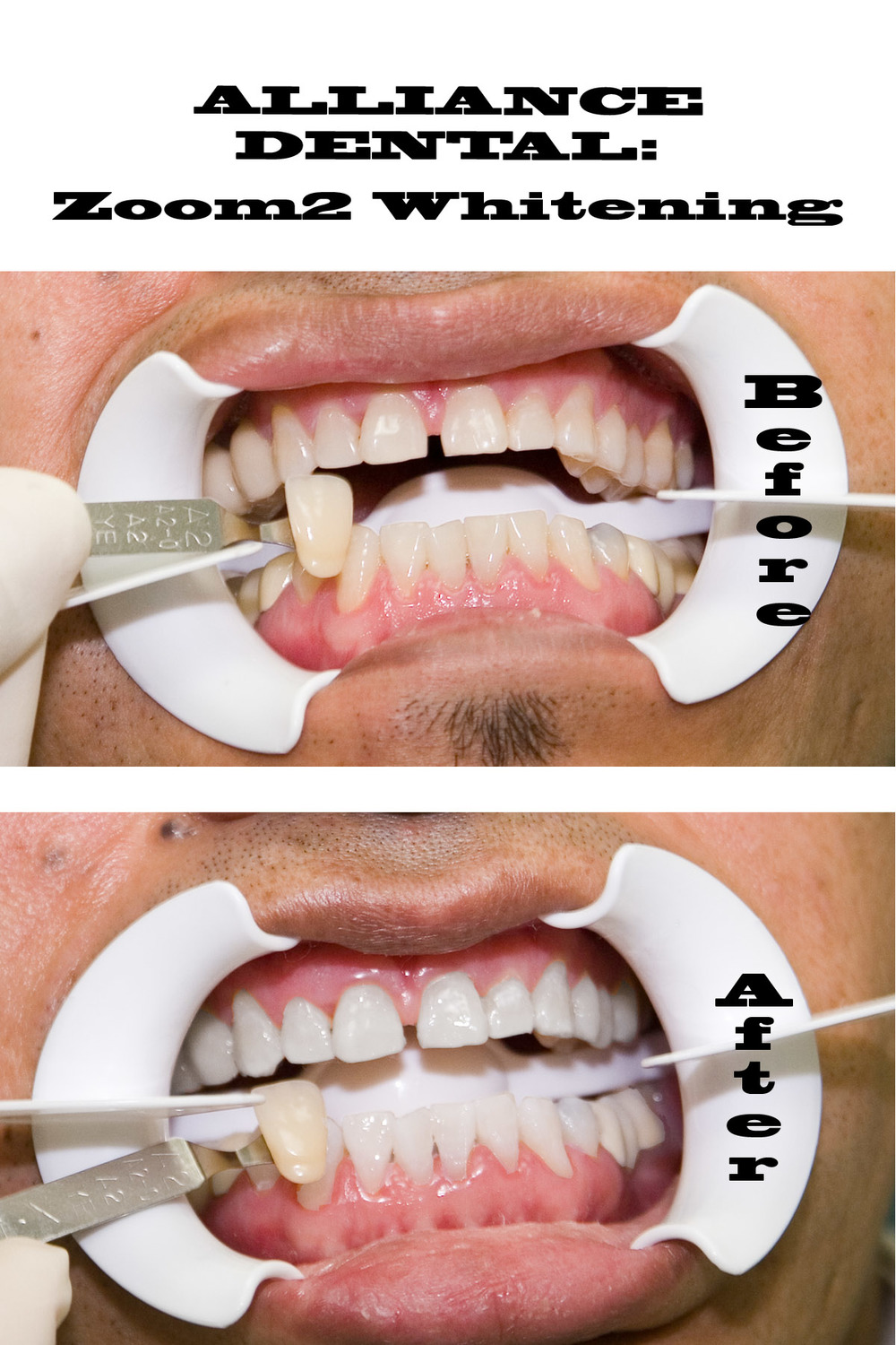 Zoom Advanced Whitening Results at Alliance Dental Center