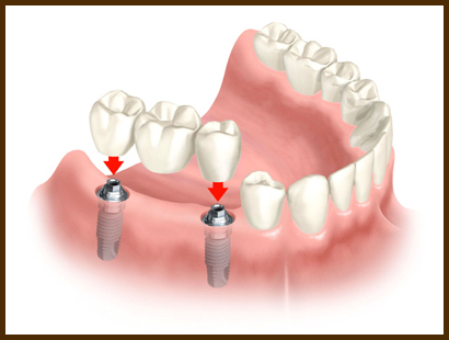 Illustration showing an implant supported dental bridge