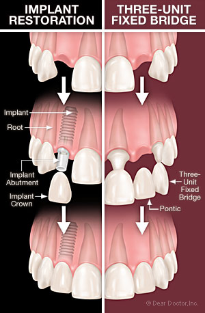 Difference between Implant supported crown and fixed dental bridge