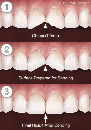 Tooth bonding procedure to repaid minor fracture