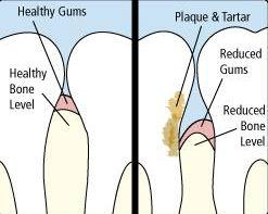 gingivitis.jpg