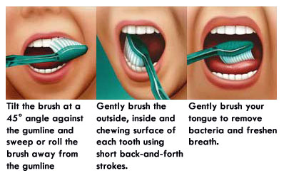 Brushing your teeth and tongue is extremely important in order to prevent bad breath.
