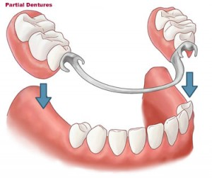 Partial Metal Frame Dentures