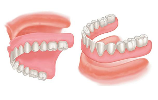 Full Dentures, Top and Bottom. These dentures are fabricated when all teeth are missing.