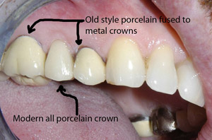Cosmetic difference between old metal base crowns and new all ceramic crowns