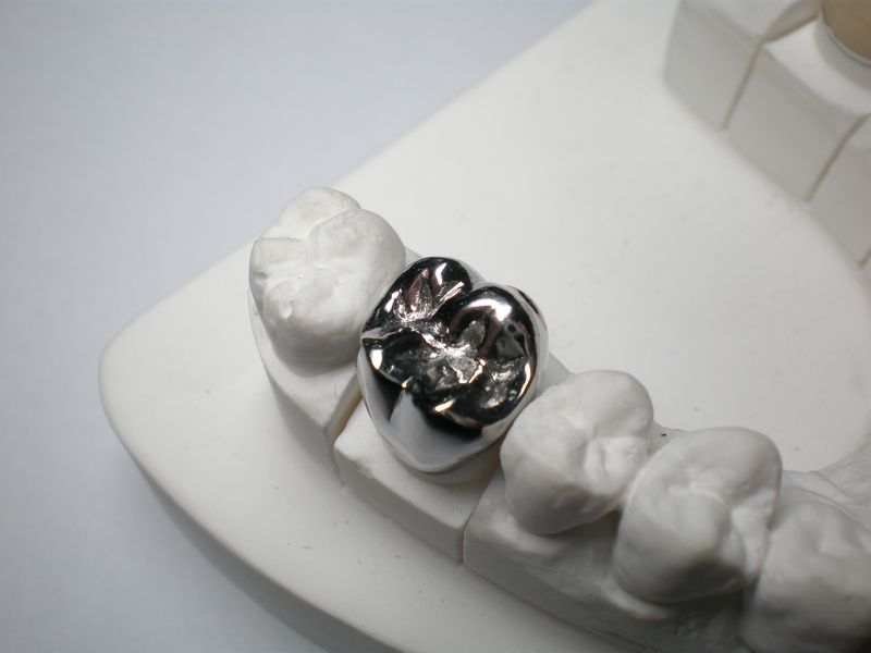 This is a cast metal dental crown. While sometimes necessary due to space limitation, we do not recommend this option due to poor aesthetics.