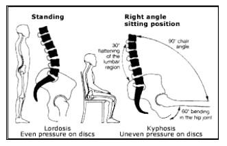 Onnatuurlijke houding van de ruggenwervels tijdens het zitten.