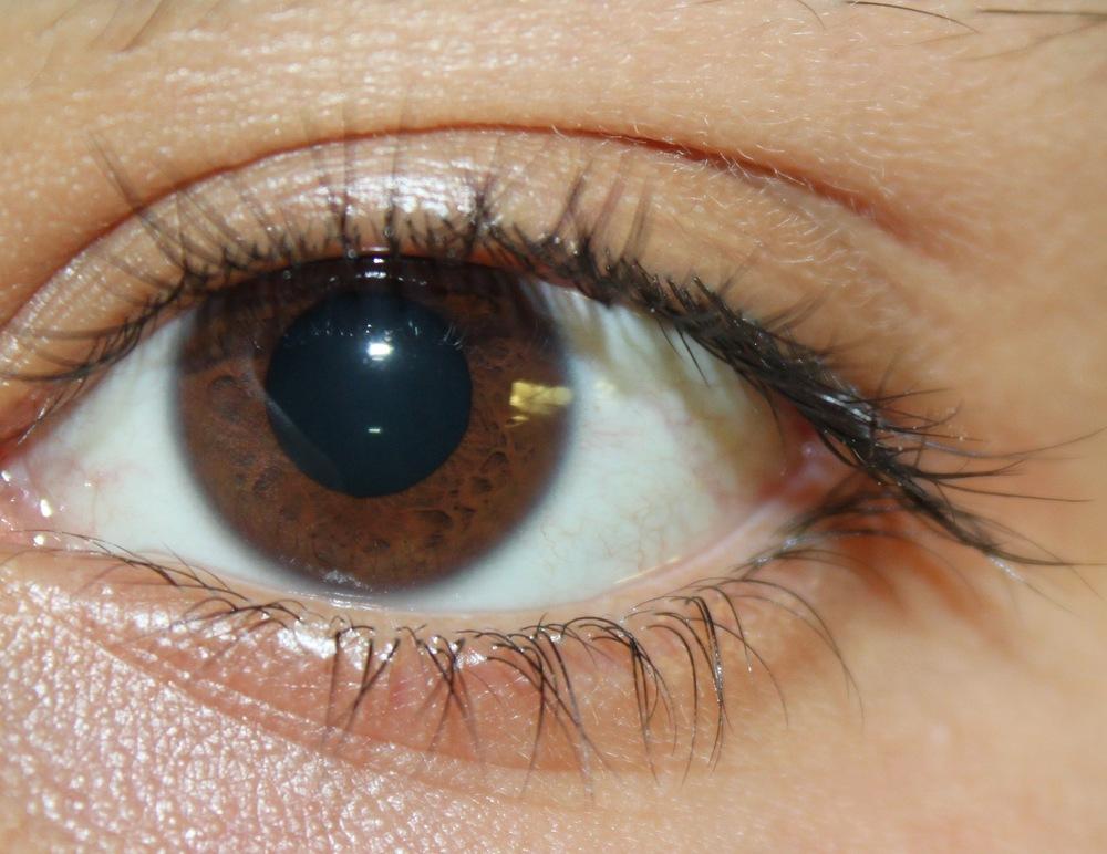 Original eye image