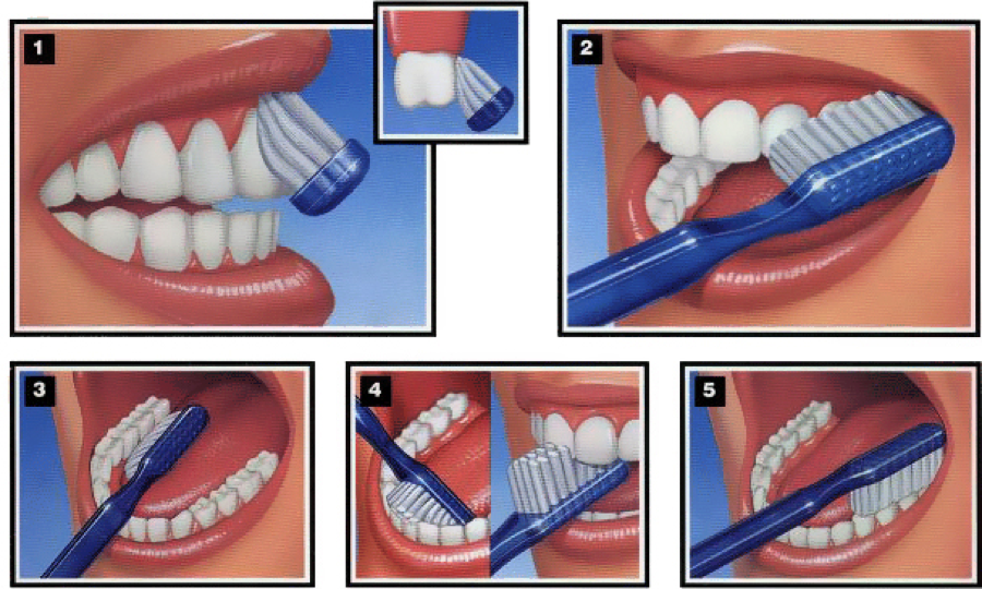 Hold the brush at a 45 degree angle, unless you are addressing the biting surfaces of the teeth.