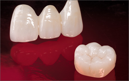 An example of a finished Emax dental bridge (right) and crown (left)
