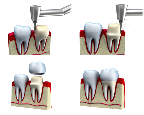 The basics of how a tooth is prepared for a crown. (Read top left to lower right)