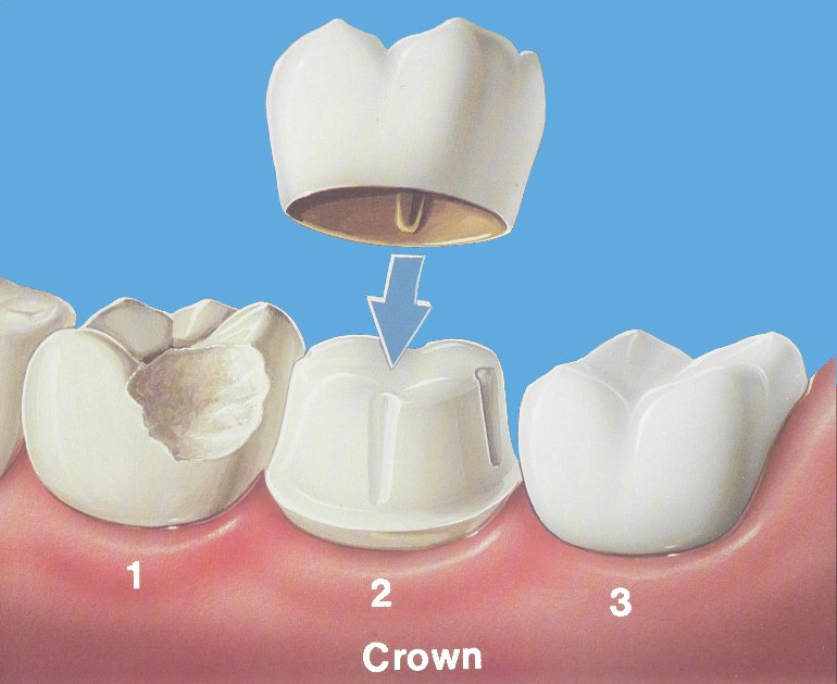 1) A natural tooth is broken/decayed and cannot be repaired with a filling 2) The tooth is prepared for a crown, giving it clearance for the new unit and proper structure. 3) The final crown is cemented and delivered.