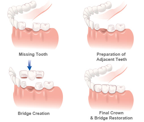 Preparing and delivering bridges is done with much the same technique. However, a missing tooth is replaced in the process.