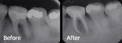 Tooth Second from left- Before and after root canal. The gutta percha shows up bright white in the X-Ray, highlighting the shape of the canal.
