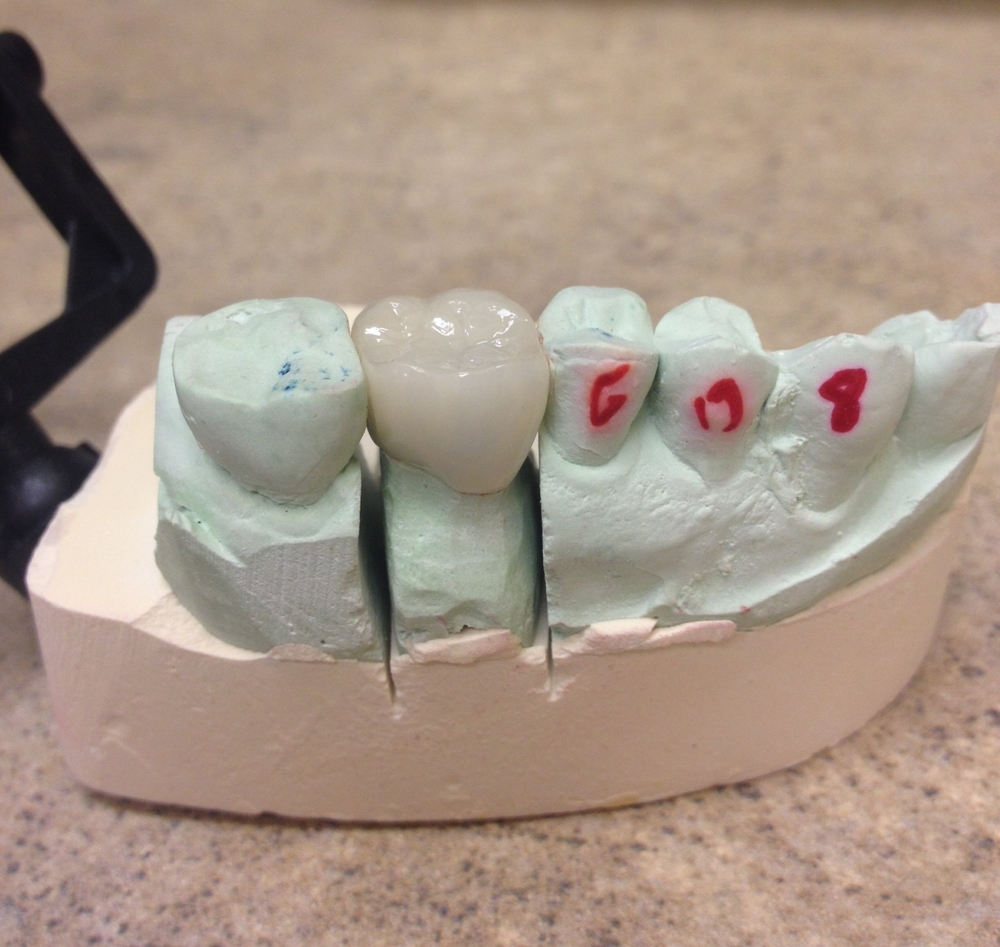 An example of the incredible work that comes out of Synergy Dental Lab. Through a combination of time, effort and technology, the quick impressions we take at our office become beautiful crowns and bridges.