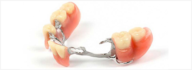 A partial denture with metal framework