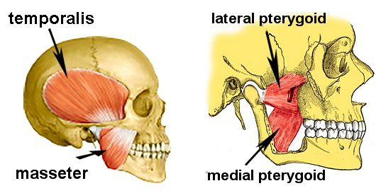 The muscles of mastication labeled. In the second image, the first masseter, temporalis and part of the jawbone have been removed.