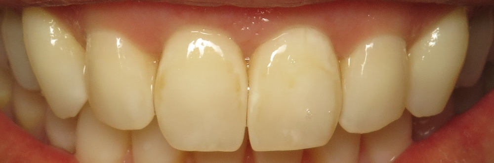 Thousand Oaks Family Dentistry - Golden Proportion Case 1 retracted smile.JPG