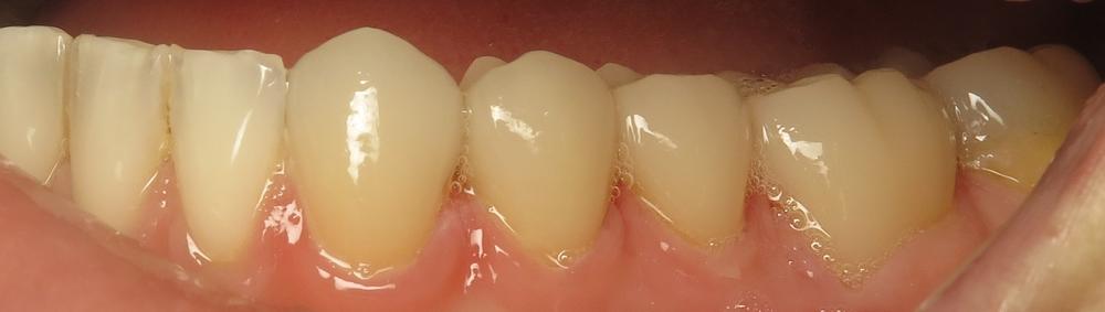Closeup of patient's left side