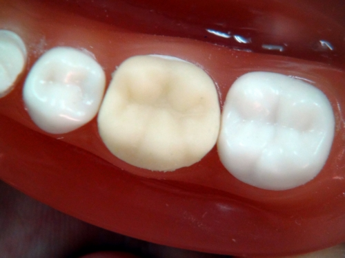 Temporary crowns are not as developed or strong as permanent crowns because they are only intended to function for about two weeks.