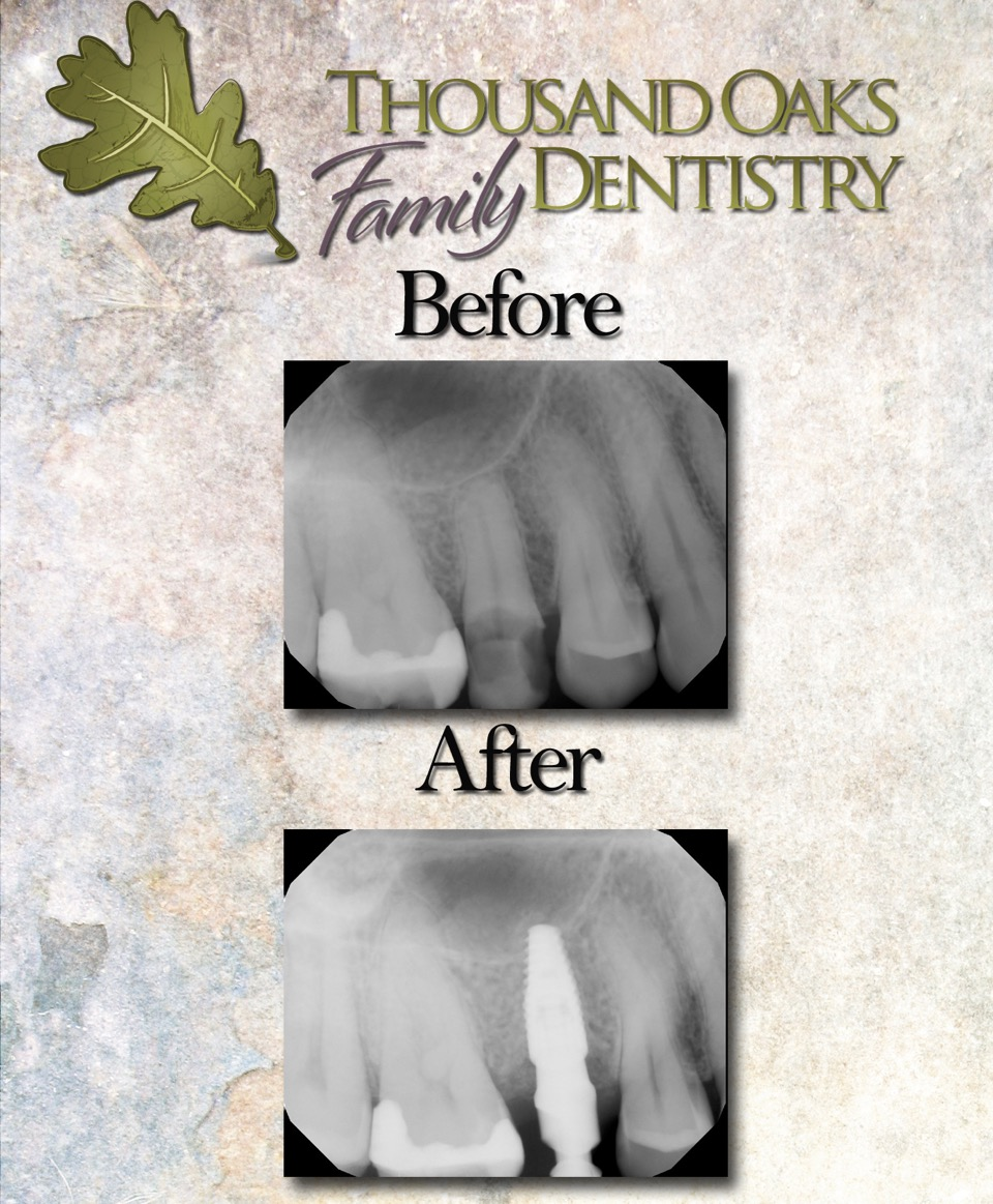 Take a look at how the decayed (darker appearing) tooth was removed and replaced with a titanium implant.