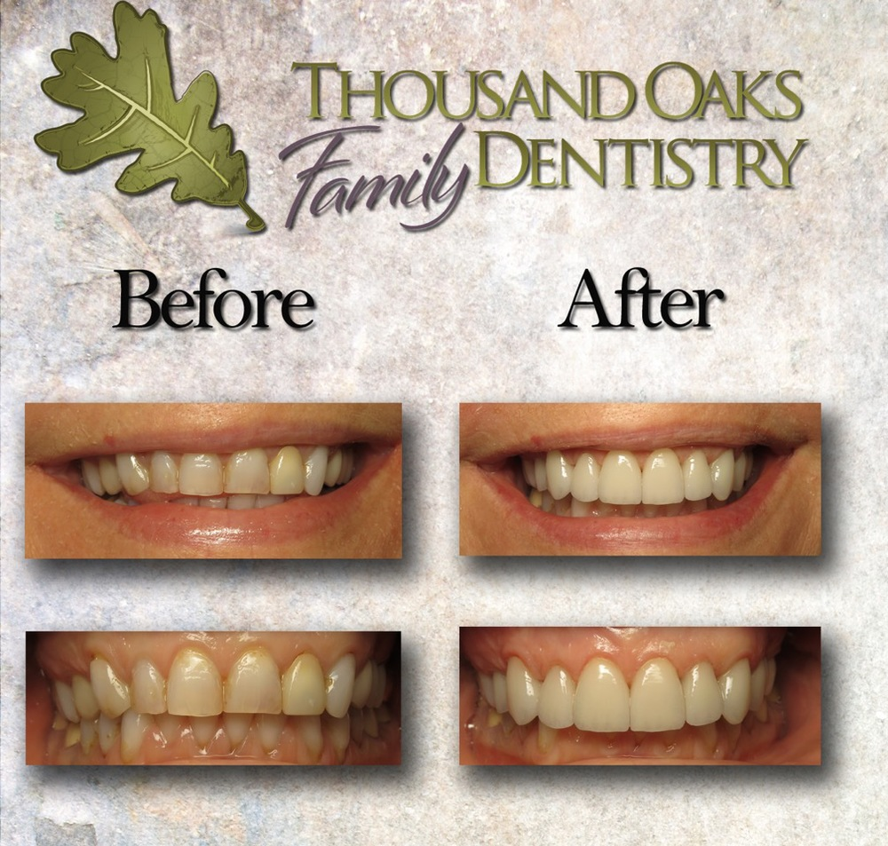 thousandoaksfamilydentistry.com