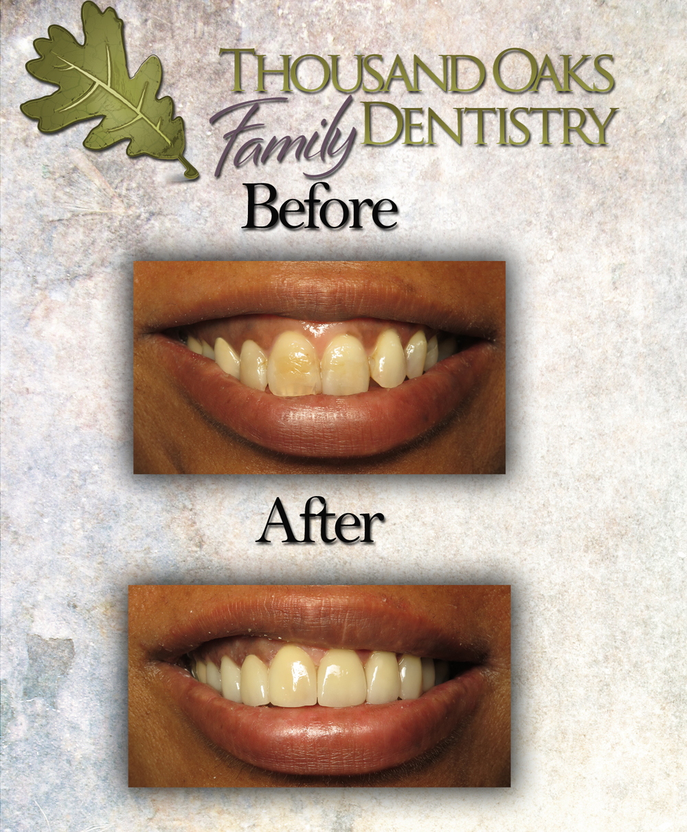 Thousandoakafamilydentistry.com