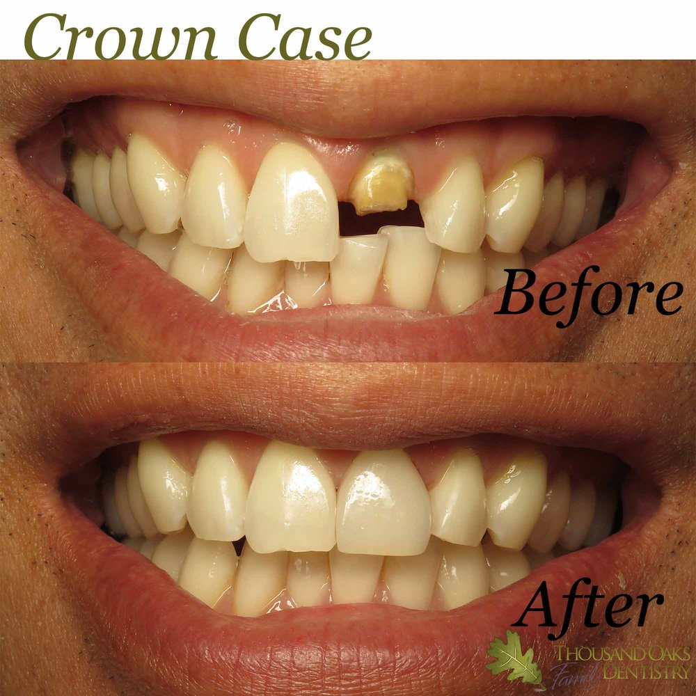 Crown Case 1.jpg
