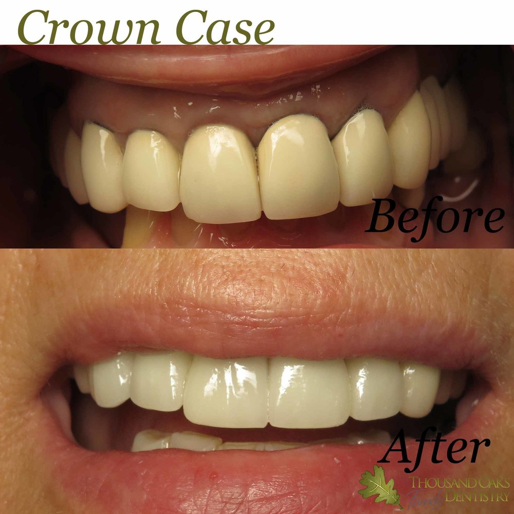Crown Case 2.jpg