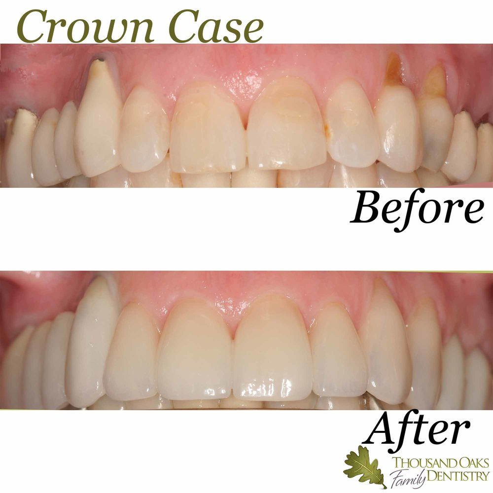 Crown Case 3.jpg