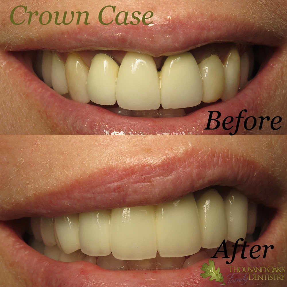 Crown Case 6.jpg