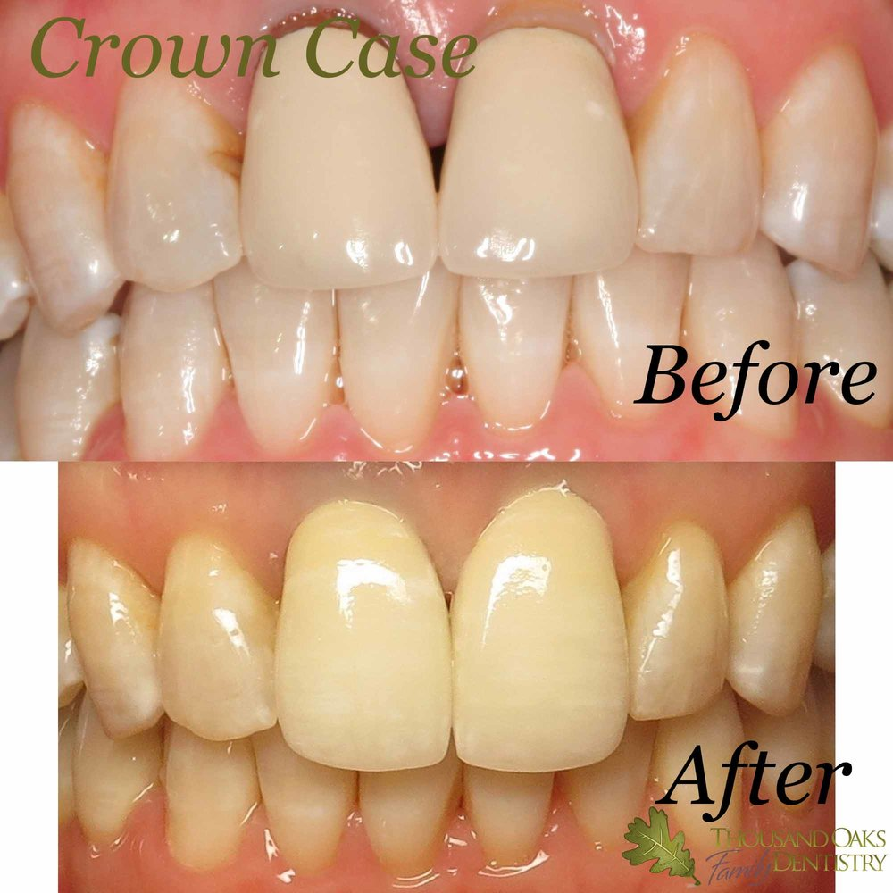 Crown Case 7.jpg
