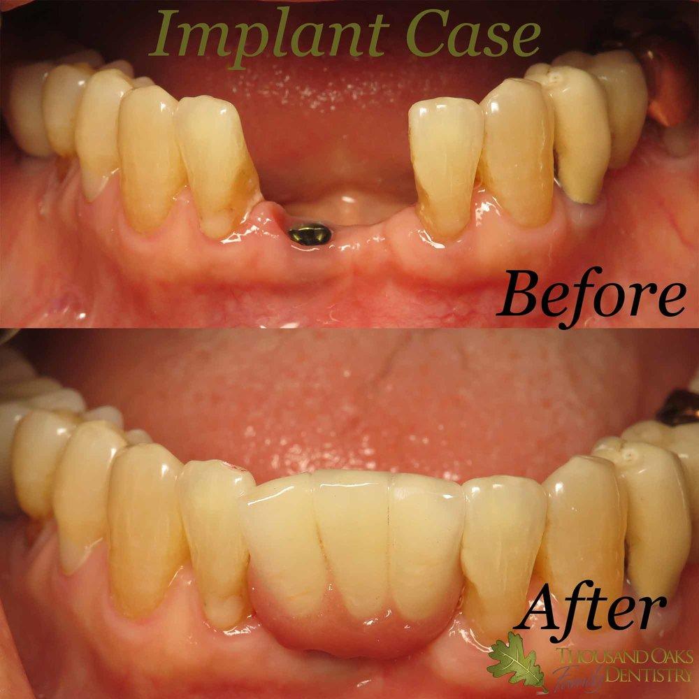 Implant Case 1.jpg
