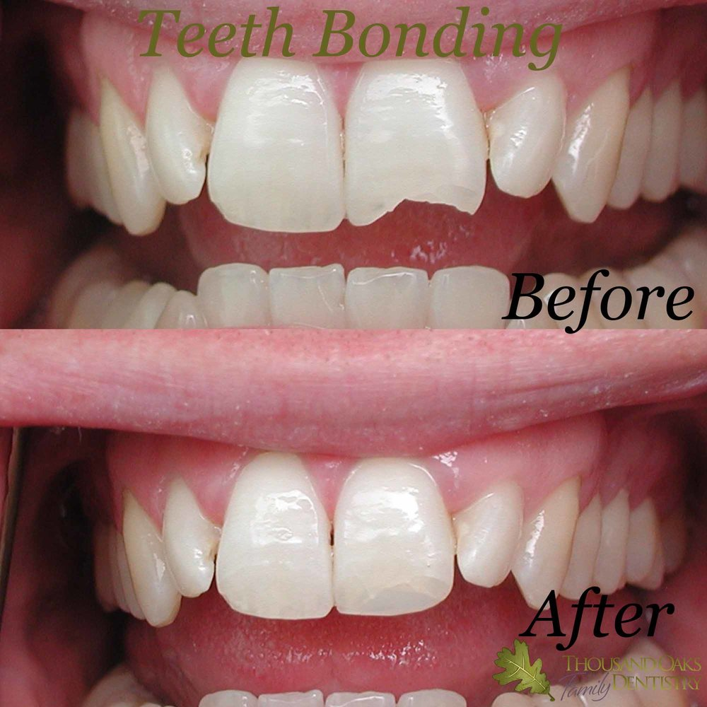 Teeth Bonding 1.jpg