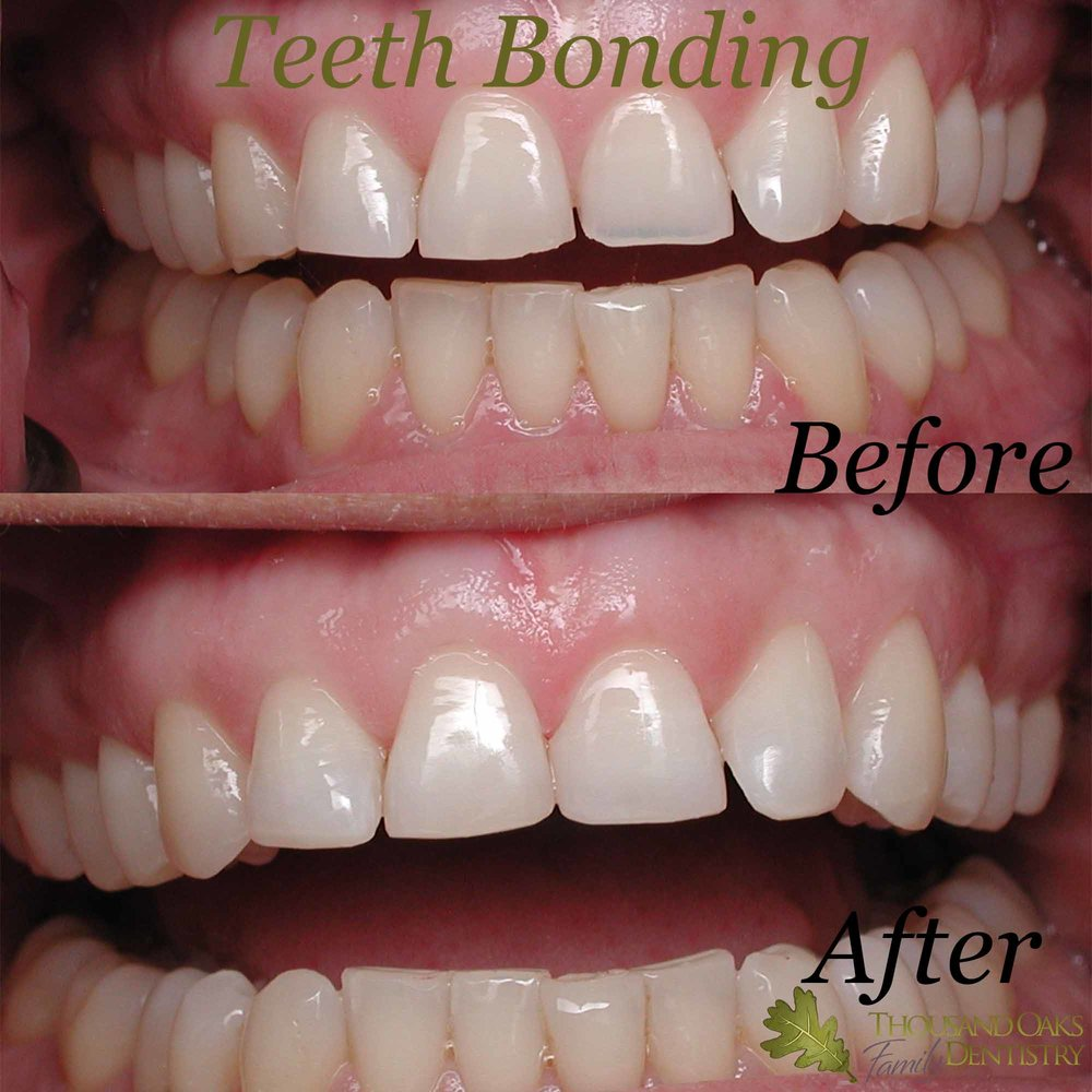 Teeth Bonding 2.jpg