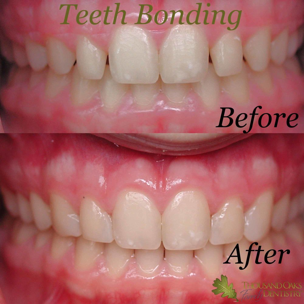 Teeth Bonding 3.jpg