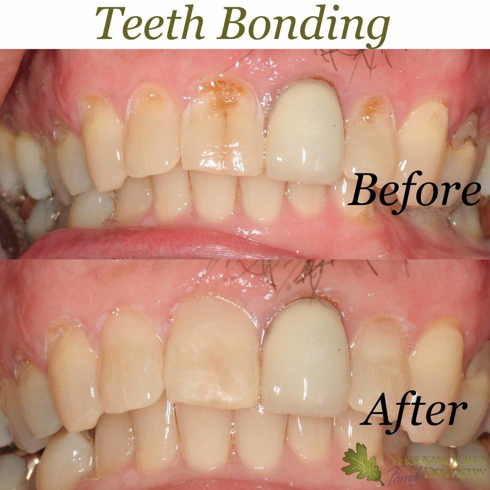 Teeth Bonding 4.jpg