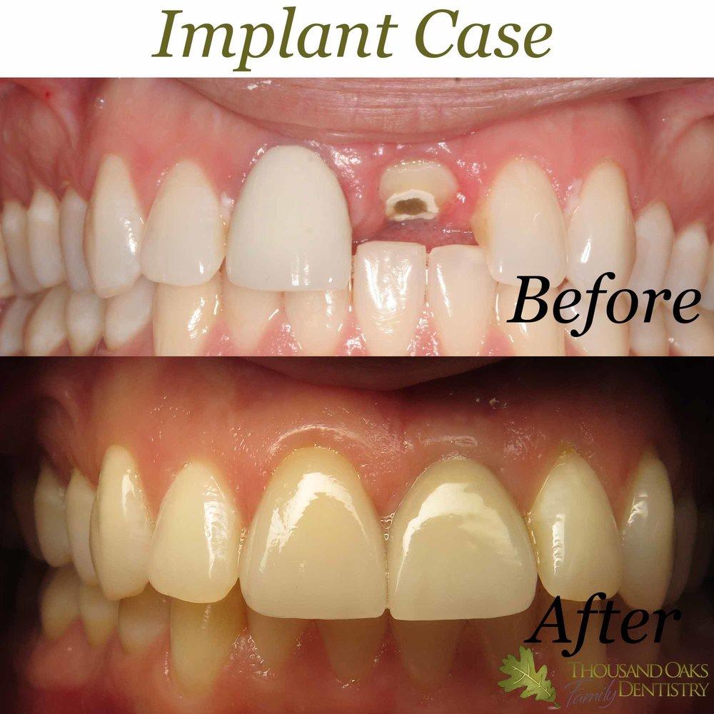 Implant Case 2.jpg