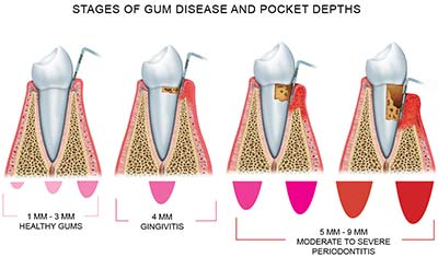 A quick infographic explaining the transition from healthy gums to disease. An important note- healthy gums can naturally have a pocket of 1-4mm.