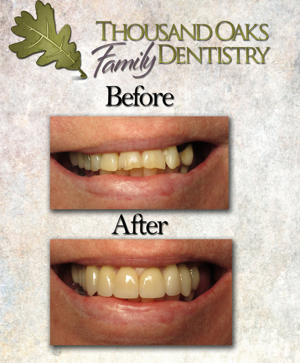 ThousandOaksFamilyDentistry