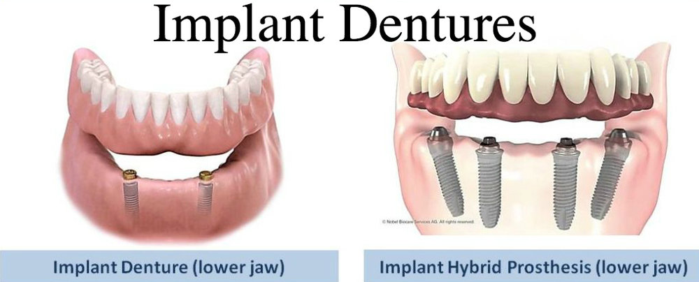 (Left): An Implant overdenture retained by two implants. (Right): A hybrid implant denture resting entirely on four implants.