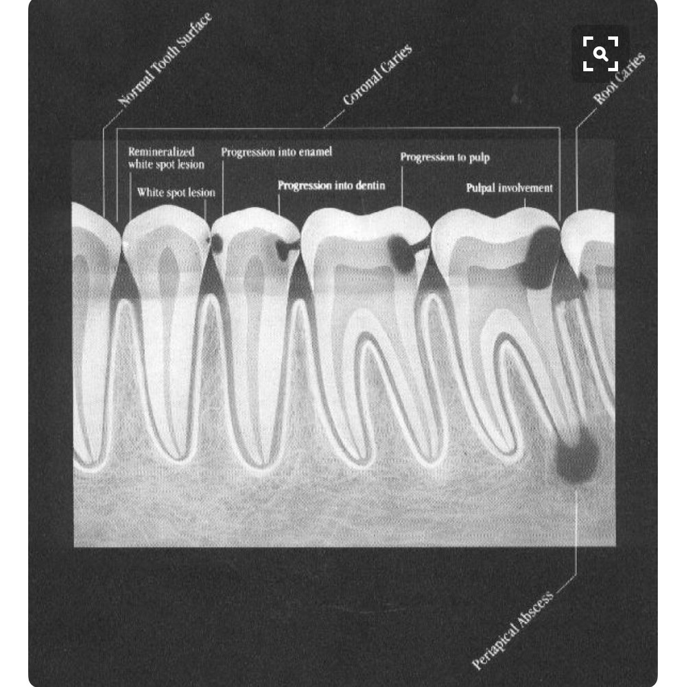This image shows the progression of cavities, as seen on dental x-rays. In the last image, the decay has reached the tooth's nerve, necessitating a root canal