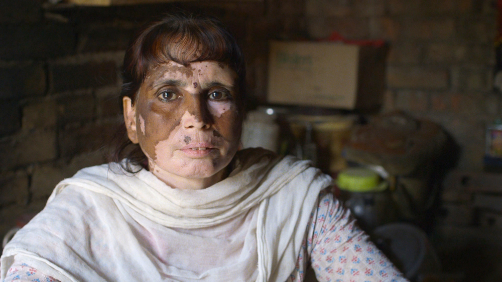 A woman who was born with an alarming skin condition due to contaminated water, food and air in her village that is situated next to a leather tannery. Image Source: The True Cost.
