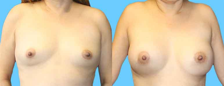 this patient is a 38 year old woman who underwent 360 ml silicone breast implant augmentation with an incision around the nipples (periareolar).