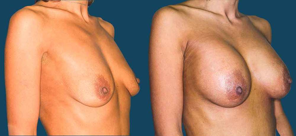 this patient is a 24 year old woman who felt she fit poorly in clothing and needed a more balanced proportion. she underwent 330 ml saline breast implants with a inframammary incision with excellent results.
